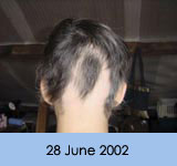Alopecia Totalis - a loss of all scalp hair. Alopecia Universalis - a loss of all scalp and body hair.