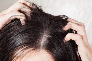 Itchy Flakey Scalp Problem