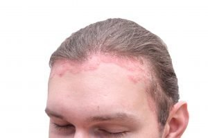 Psoriasis on man's forehead and scalp