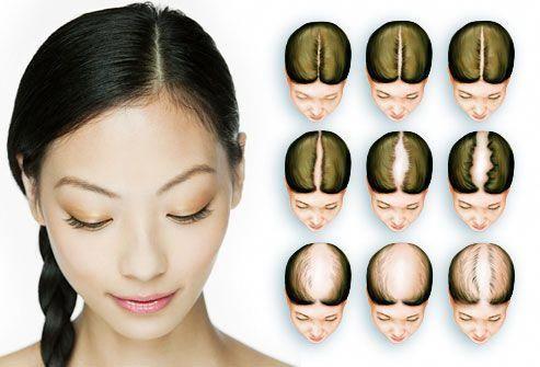 Female Hair Loss Pattern, Savin Scale,