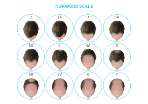 Norwood scale for male hair loss